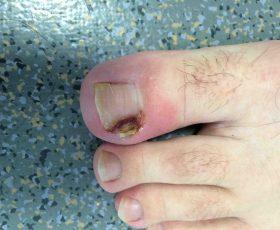 Comment savoir si on a un ongle incarne ?