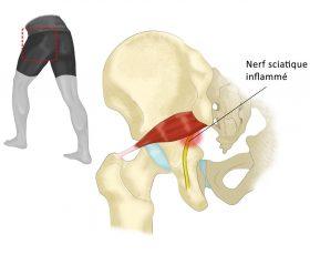Contracture musculaire : comment les éviter